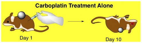 carboplatin anticancer chemotherapy toxicity